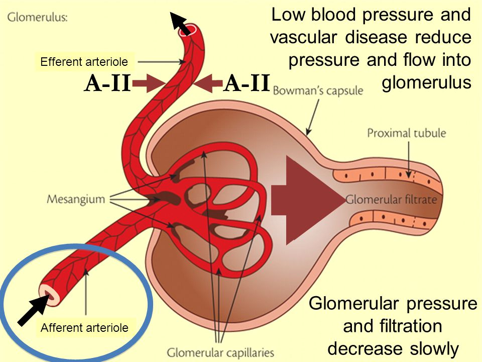 A-II Afferent arteriole Efferent arteriole Glomerular pressure and filtration suddenly decrease a lot ACEI and ARBs remove A-II effect: efferent arteriole dilates