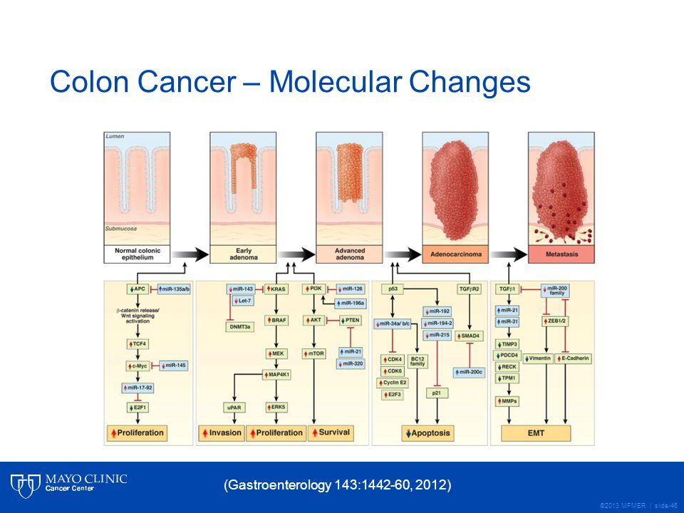 ©2013 MFMER | slide-46 Colon Cancer – Molecular Changes (Gastroenterology 143:1442-60, 2012)