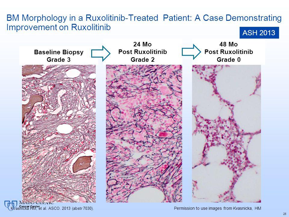 BM Morphology in a Ruxolitinib-Treated Patient: A Case Demonstrating Improvement on Ruxolitinib 26 Baseline Biopsy Grade 3 24 Mo Post Ruxolitinib Grad