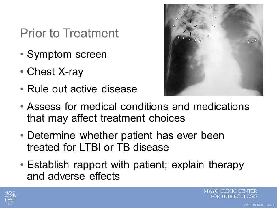 ©2013 MFMER | slide-6 Prior to Treatment Symptom screen Chest X-ray Rule out active disease Assess for medical conditions and medications that may aff