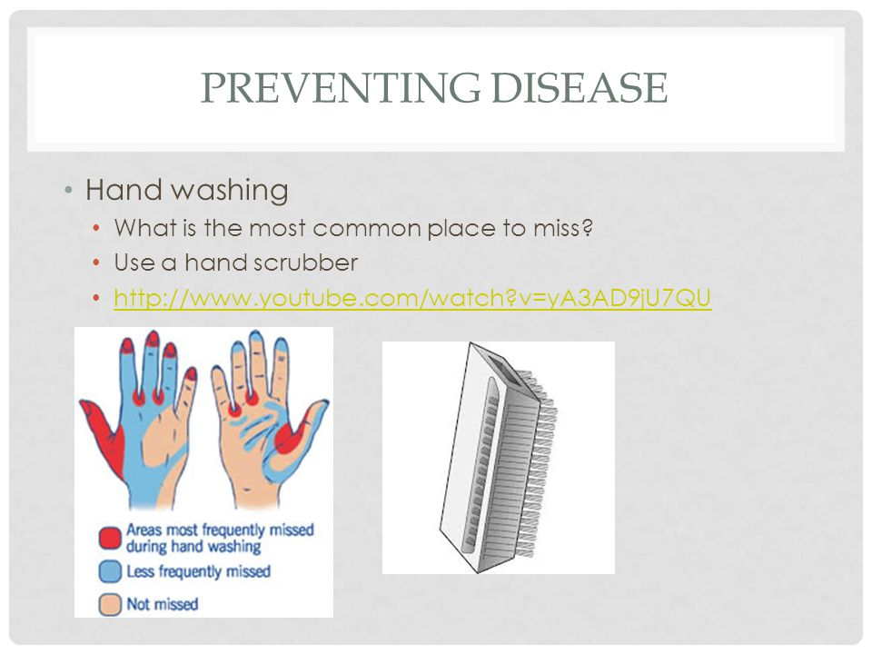 PREVENTING DISEASE Hand washing What is the most common place to miss? Use a hand scrubber http://www.youtube.com/watch?v=yA3AD9jU7QU