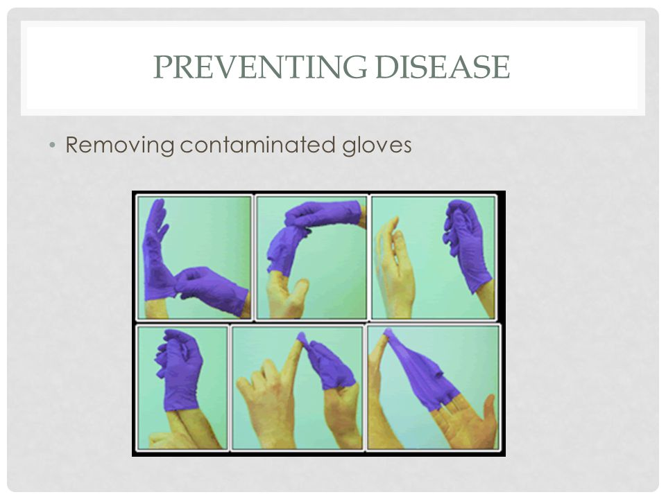 PREVENTING DISEASE Removing contaminated gloves