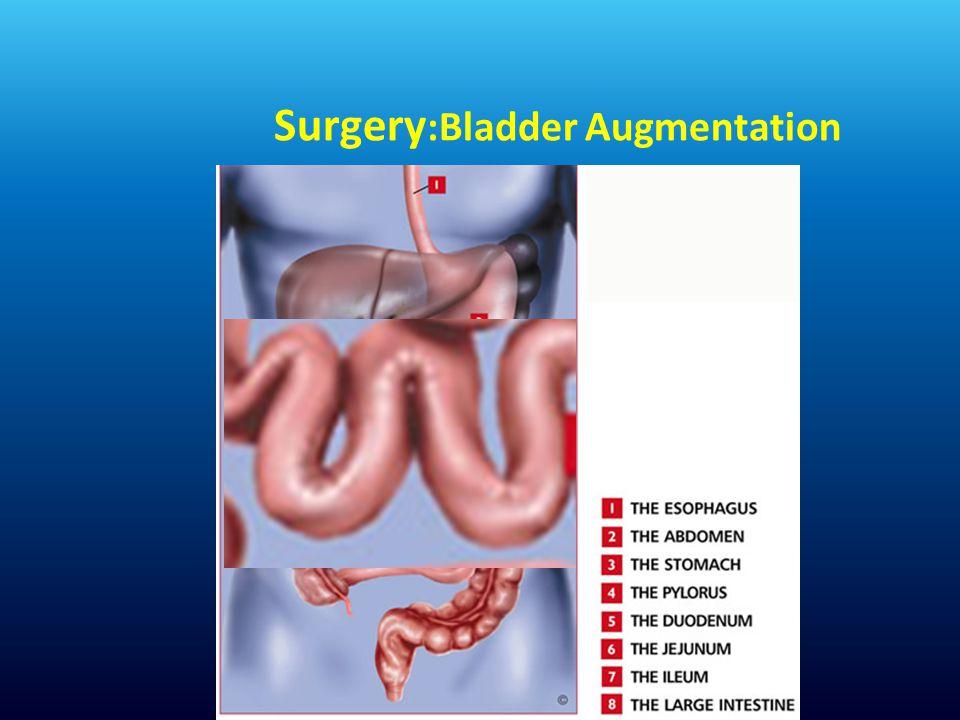 Surgery :Bladder Augmentation