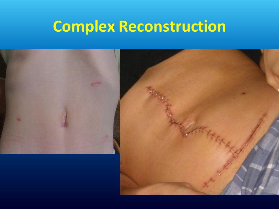 Complex Reconstruction