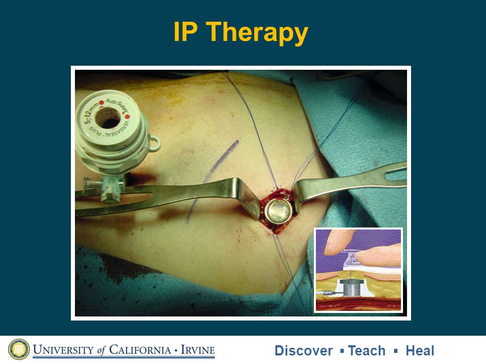 IP Therapy Discover Teach Heal