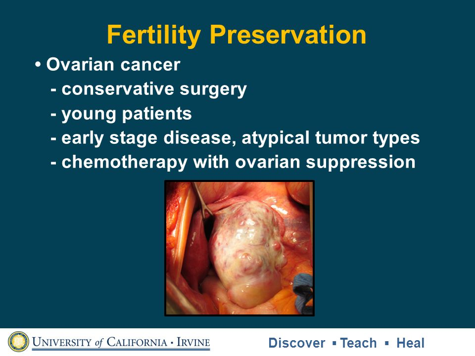 Fertility Preservation Ovarian cancer - conservative surgery - young patients - early stage disease, atypical tumor types - chemotherapy with ovarian suppression Discover Teach Heal