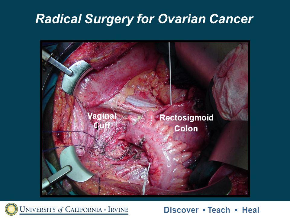 Rectosigmoid Colon Vaginal Cuff Radical Surgery for Ovarian Cancer Discover Teach Heal