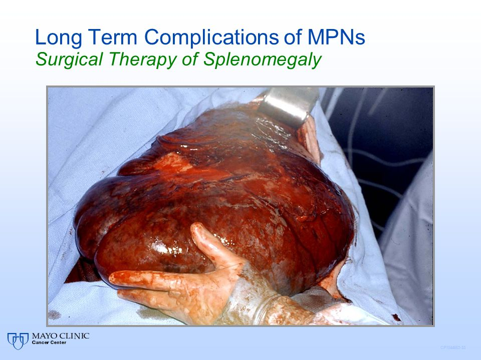 CP1044663-33 Long Term Complications of MPNs Surgical Therapy of Splenomegaly