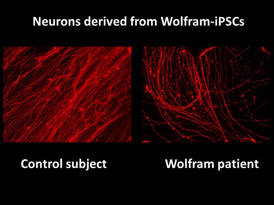Control subjectlWolfram patient Neurons derived from Wolfram-iPSCs