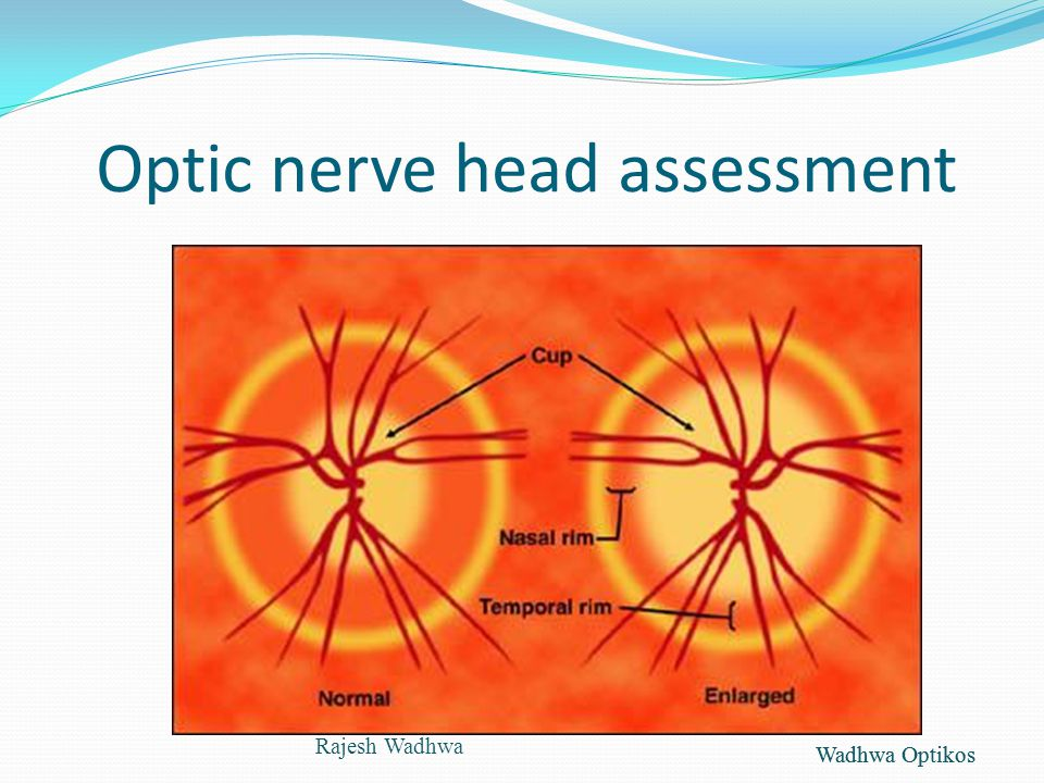 Wadhwa Optikos Optic nerve head assessment Rajesh Wadhwa