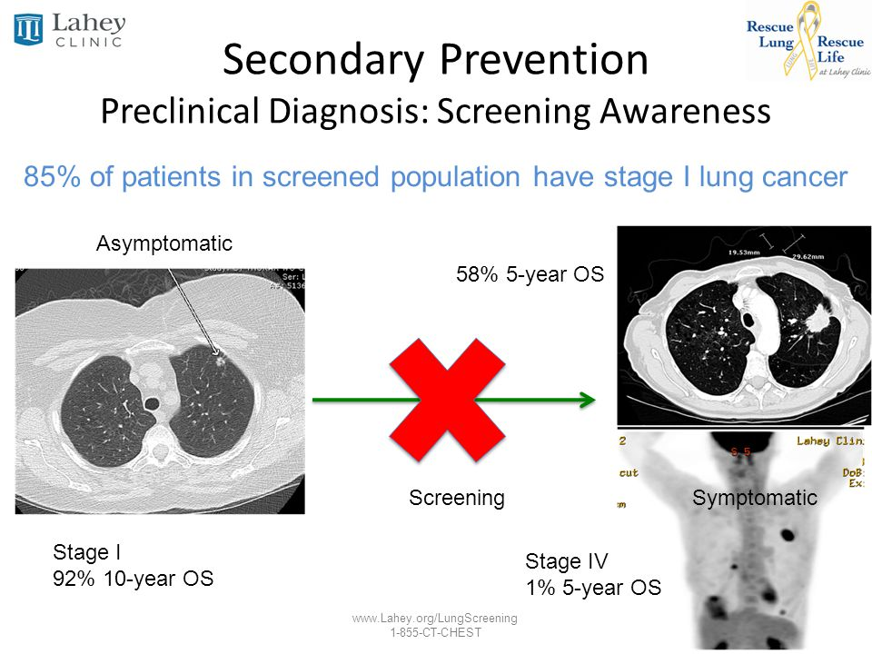 www.Lahey.org/LungScreening 1-855-CT-CHEST Secondary Prevention Preclinical Diagnosis: Screening Awareness Asymptomatic Screening Stage I 92% 10-year