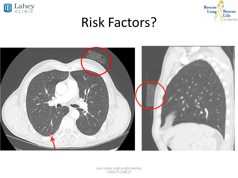 www.Lahey.org/LungScreening 1-855-CT-CHEST Risk Factors?