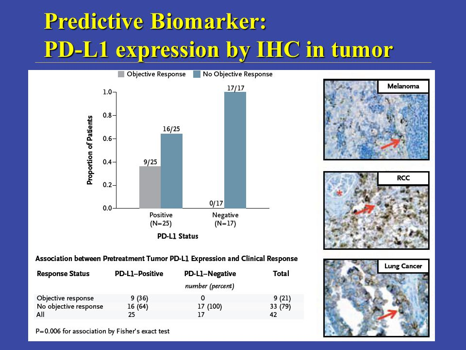 Predictive Biomarker: PD-L1 expression by IHC in tumor