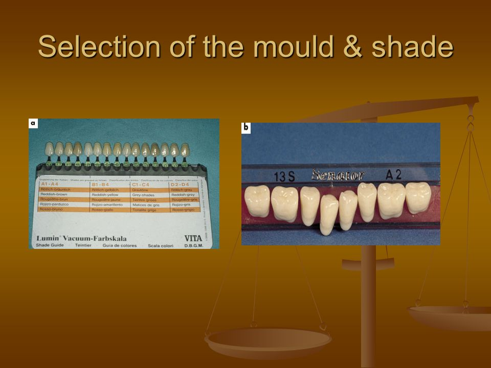 Selection of the mould & shade