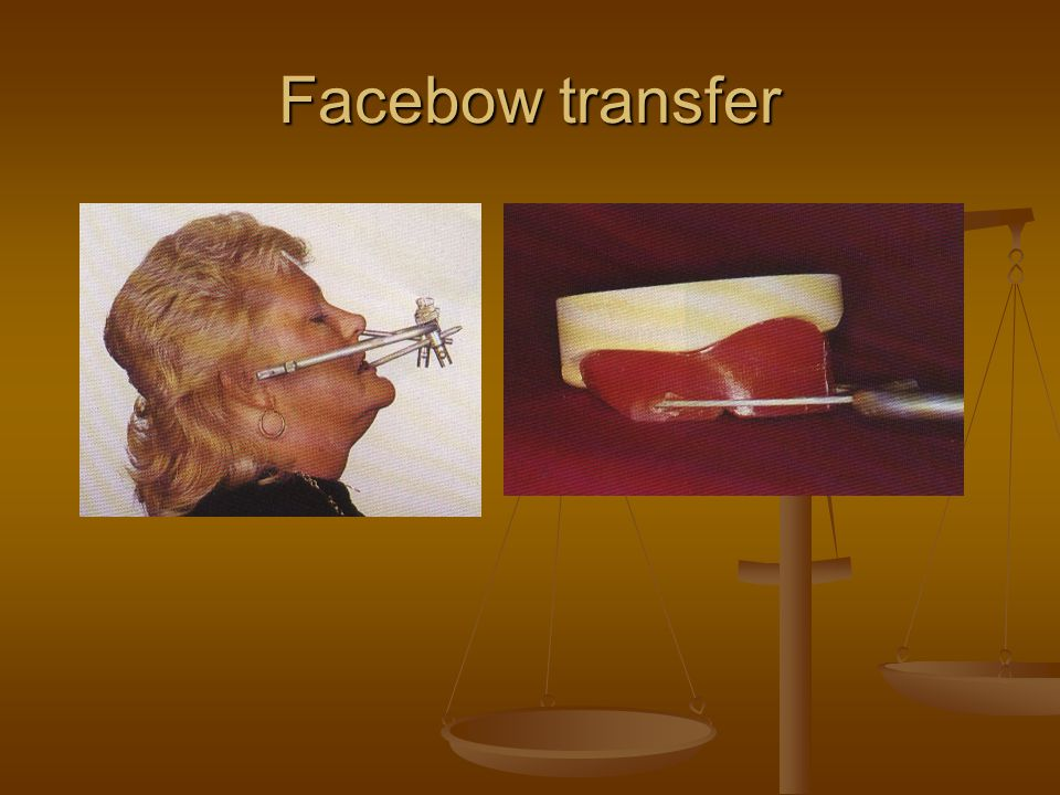 Facebow transfer