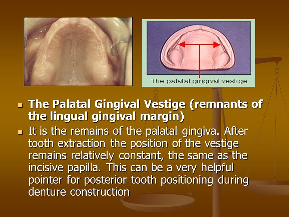 The Palatal Gingival Vestige (remnants of the lingual gingival margin) It is the remains of the palatal gingiva.