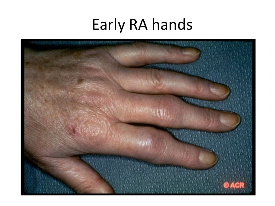 Early RA hands