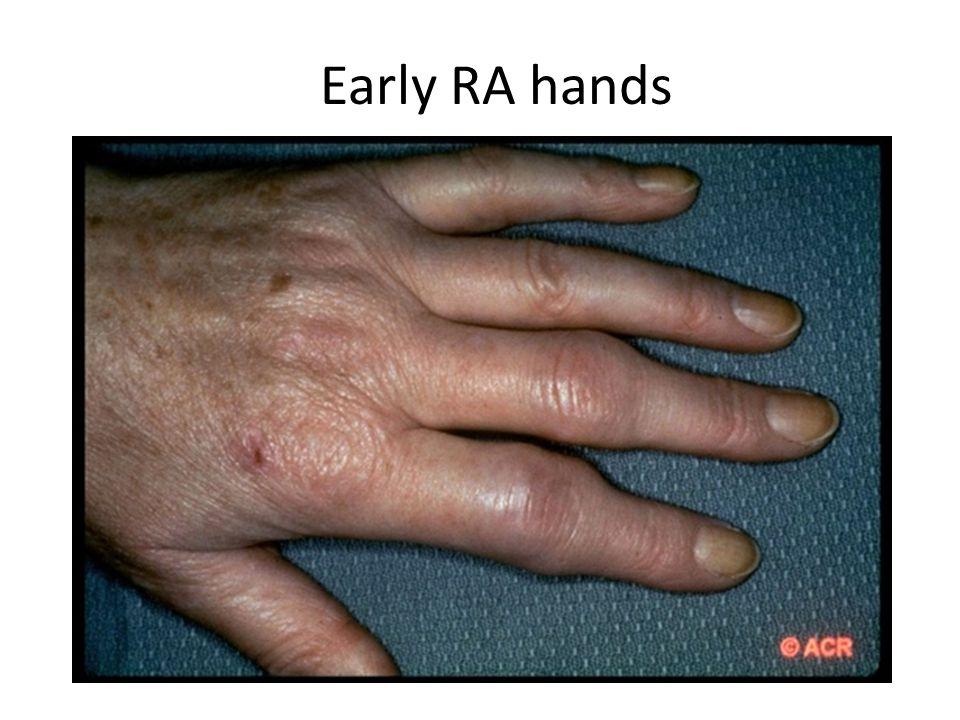 Rheumatoid factor and Anti citrullinated peptide antibodies 9.Bas S; Genevay S; Meyer O; Gabay Anti-cyclic citrullinated peptide antibodies, IgM and IgA rheumatoid factors in the diagnosis and prognosis of rheumatoid arthritis.