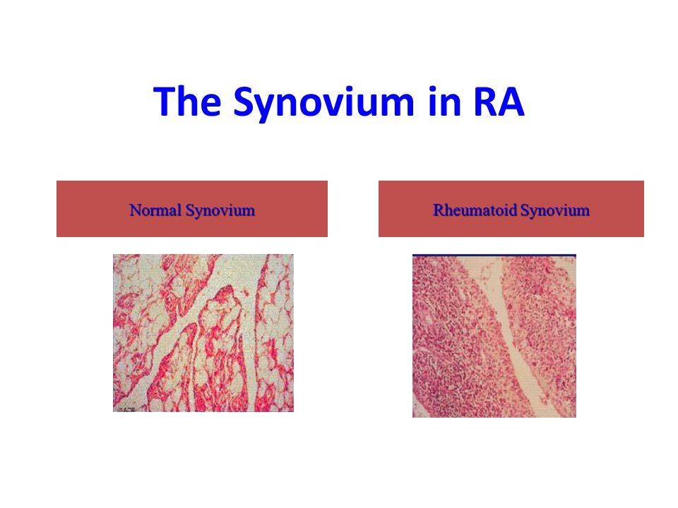 The Synovium in RA Normal Synovium Rheumatoid Synovium