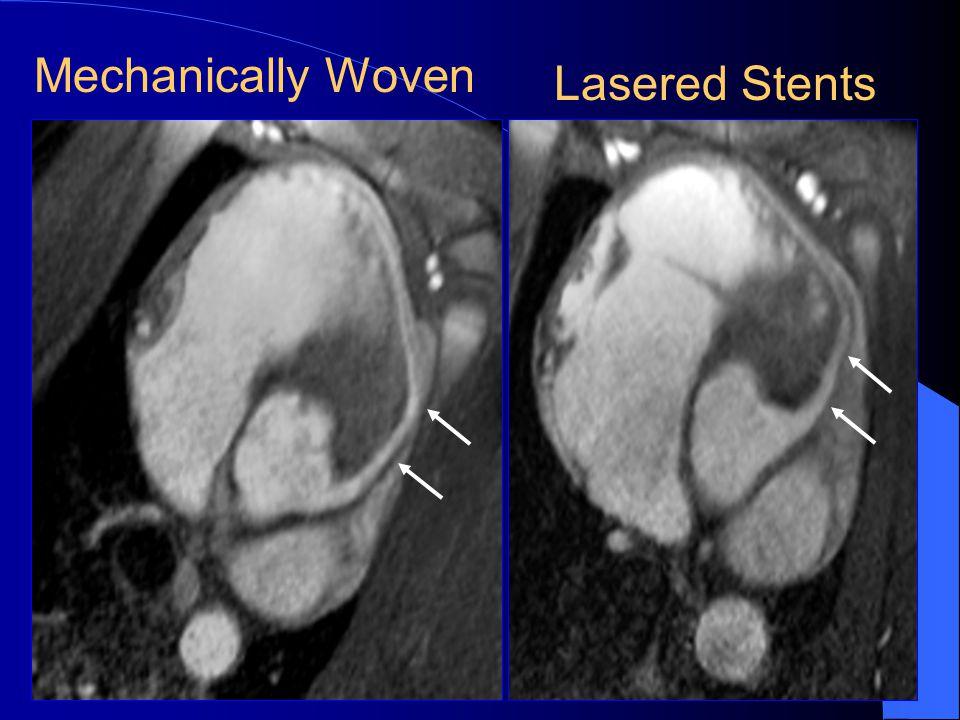 First MR-guided Coronary Artery Stent Placement Spuentrup E, Ruebben A, Schaeffter T, Manning W, Guenther RW, Buecker A.