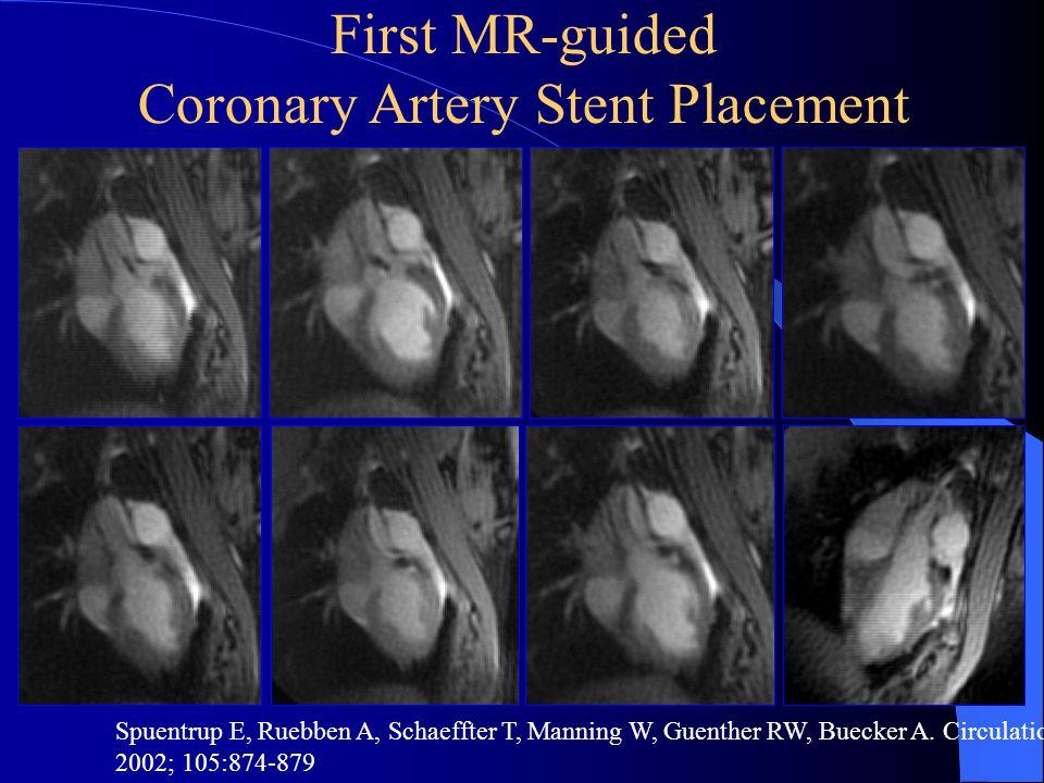 FDA Approval MR-compatible stents allow non invasive screening Use of non MR-compatible stents prevents non invasive screening
