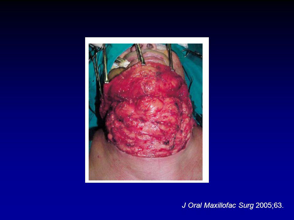 J Oral Maxillofac Surg 2005;63.
