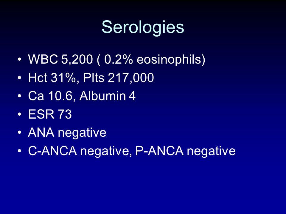 Serologies WBC 5,200 ( 0.2% eosinophils) Hct 31%, Plts 217,000 Ca 10.6, Albumin 4 ESR 73 ANA negative C-ANCA negative, P-ANCA negative