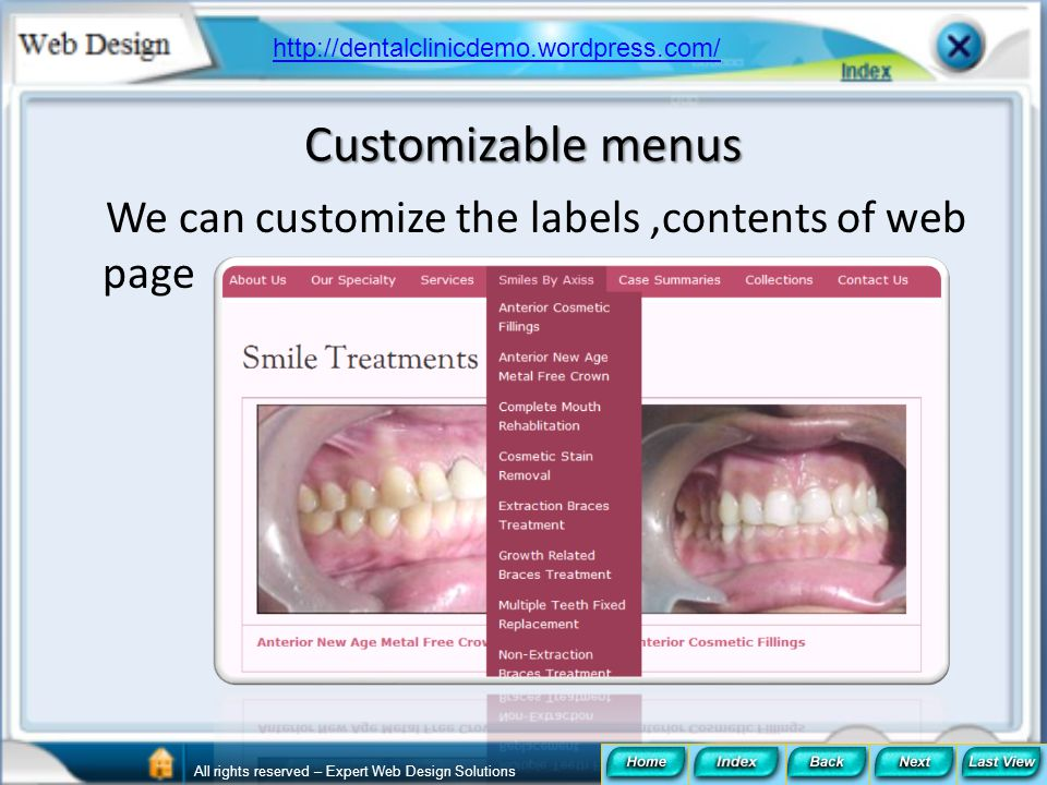 Customizable menus We can customize the labels,contents of web page http://dentalclinicdemo.wordpress.com/ All rights reserved – Expert Web Design Sol