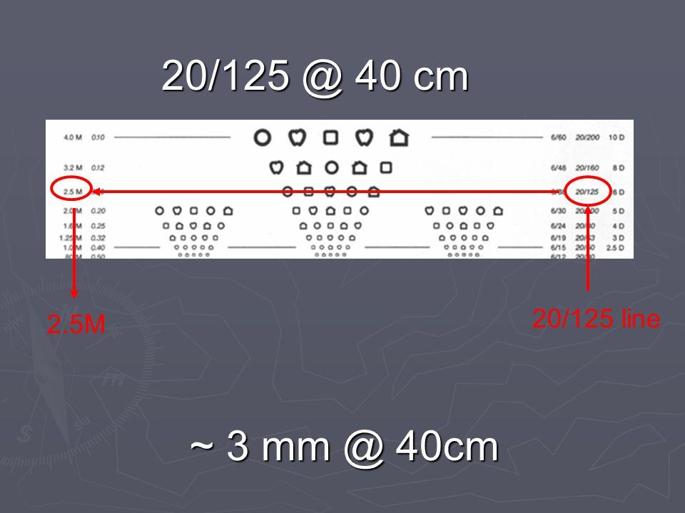20/125 @ 40 cm ~ 3 mm @ 40cm 20/125 line 2.5M