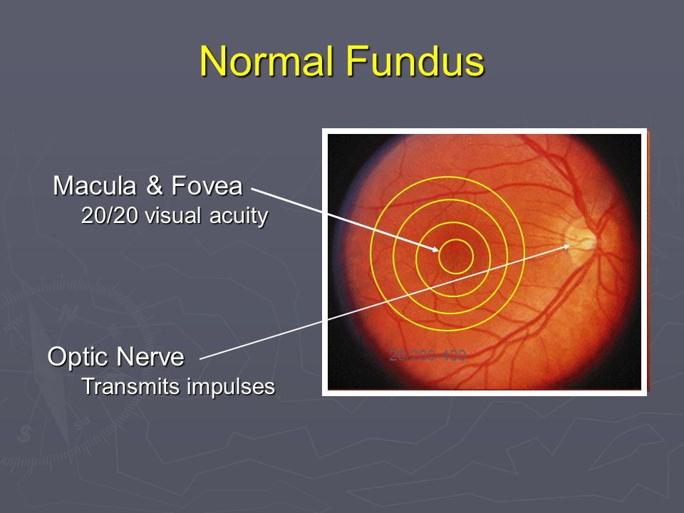 Normal Fundus Macula & Fovea 20/20 visual acuity 20/200-400 Optic Nerve Transmits impulses