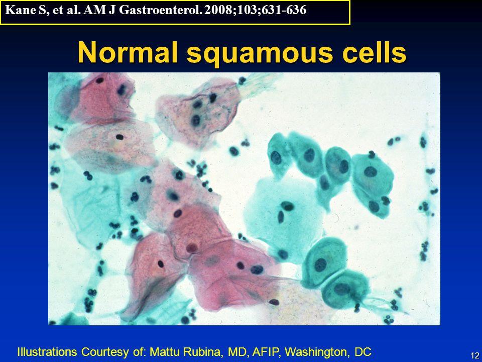 12 Normal squamous cells Kane S, et al.AM J Gastroenterol.