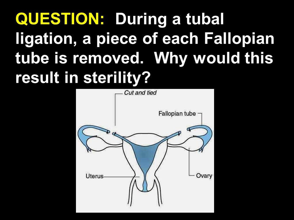 QUESTION: During a tubal ligation, a piece of each Fallopian tube is removed. Why would this result in sterility?