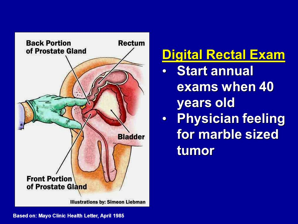 Digital Rectal Exam Start annual exams when 40 years old Start annual exams when 40 years old Physician feeling for marble sized tumor Physician feeli