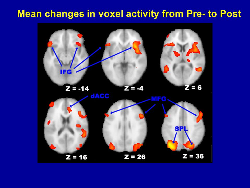 Mean changes in voxel activity from Pre- to Post
