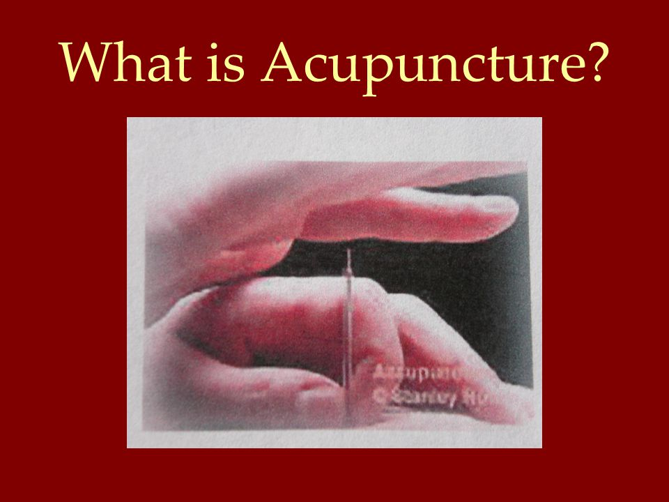 How Does Acupuncture Work.