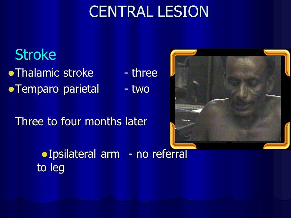 CENTRAL LESION Stroke Thalamic stroke - three Thalamic stroke - three Temparo parietal- two Temparo parietal- two Three to four months later Ipsilateral arm - no referral to leg Ipsilateral arm - no referral to leg