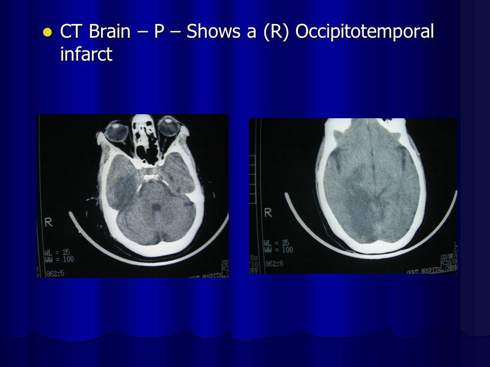 CT Brain – P – Shows a (R) Occipitotemporal infarct CT Brain – P – Shows a (R) Occipitotemporal infarct