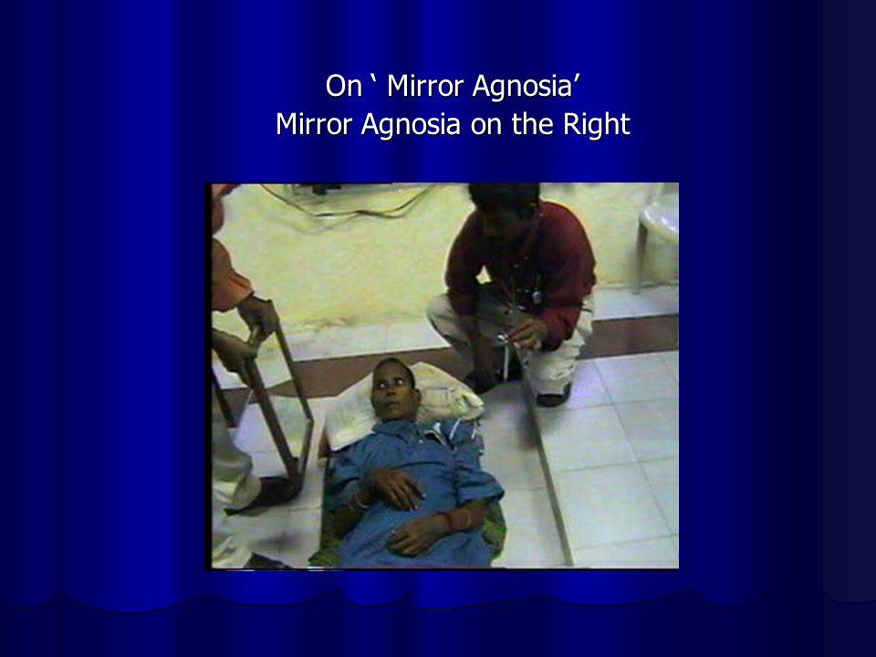 On Mirror Agnosia Mirror Agnosia on the Right