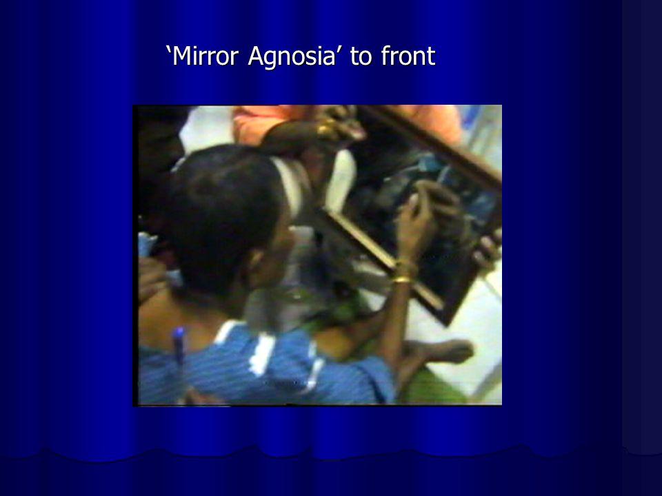 Mirror Agnosia to front