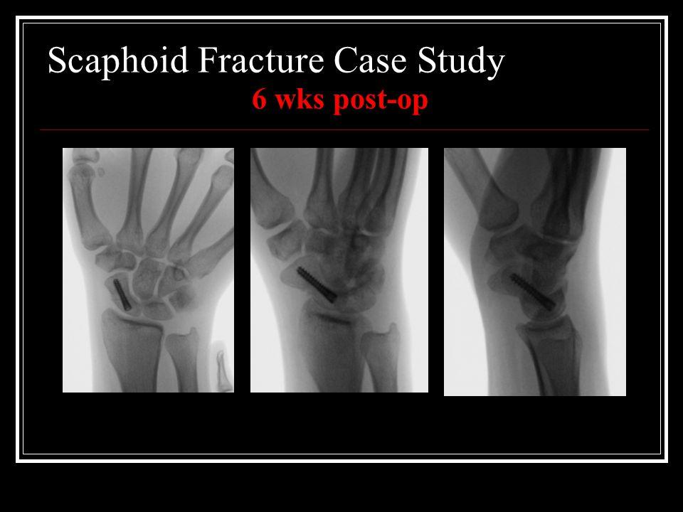 Scaphoid Fracture Case Study 6 wks post-op