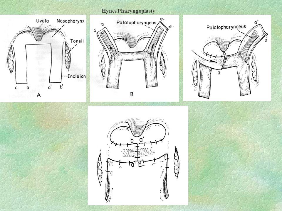 Hynes Pharyngoplasty
