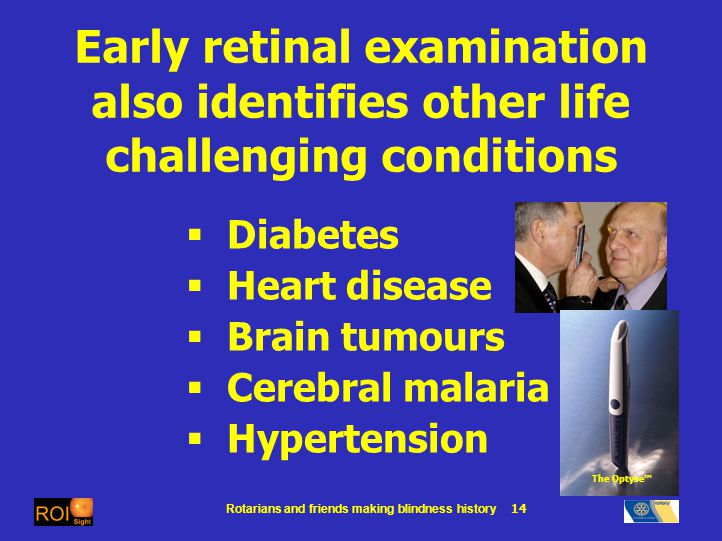 Rotarians and friends making blindness history 14 Early retinal examination also identifies other life challenging conditions Diabetes Heart disease Brain tumours Cerebral malaria Hypertension The Optyse