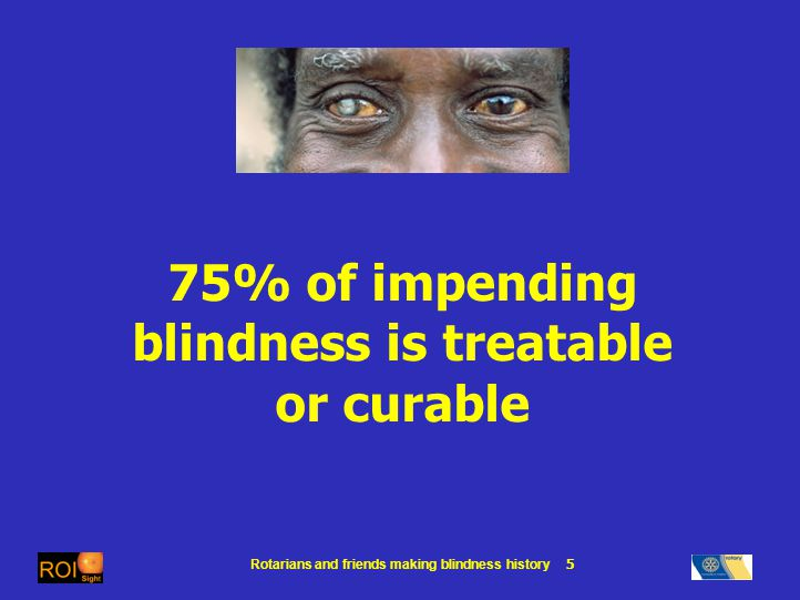 Rotarians and friends making blindness history 5 75% of impending blindness is treatable or curable