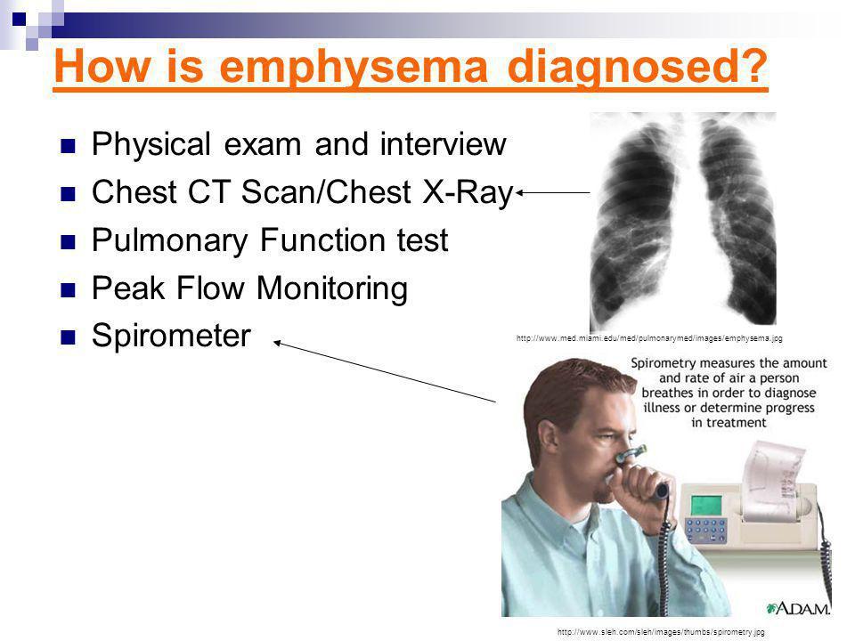 How is emphysema treated.