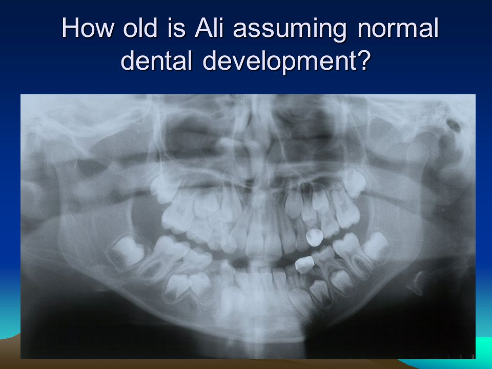 How old is Ali assuming normal dental development? How old is Ali assuming normal dental development?