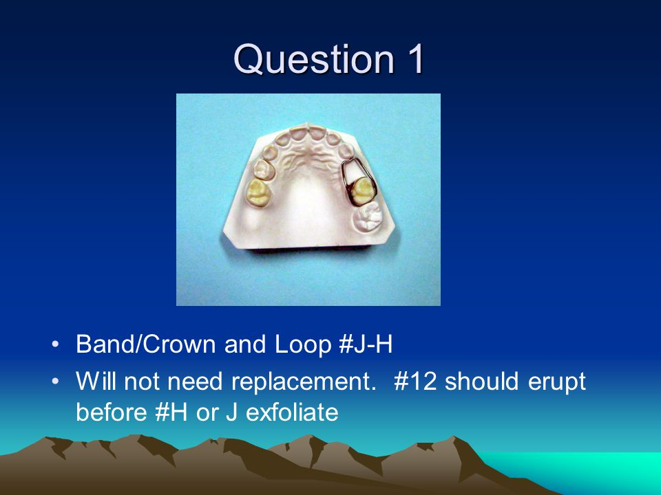 Question 1 Band/Crown and Loop #J-H Will not need replacement. #12 should erupt before #H or J exfoliate