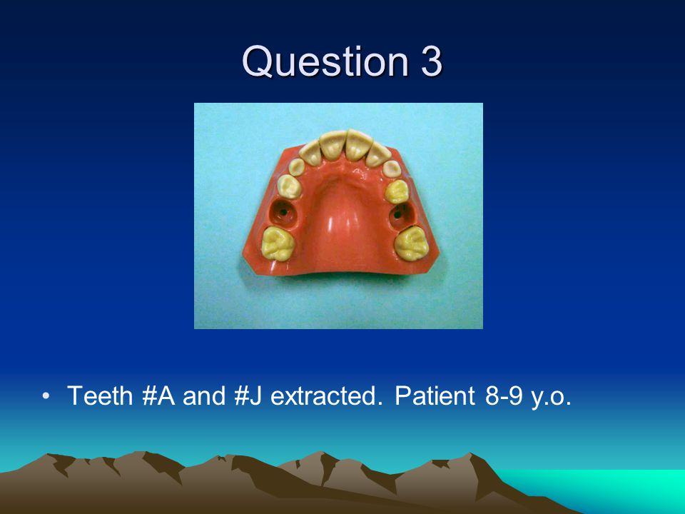 Question 3 Teeth #A and #J extracted. Patient 8-9 y.o.