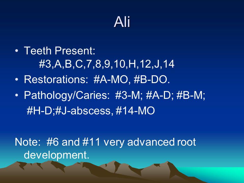 Ali Teeth Present: #3,A,B,C,7,8,9,10,H,12,J,14 Restorations: #A-MO, #B-DO. Pathology/Caries: #3-M; #A-D; #B-M; #H-D;#J-abscess, #14-MO Note: #6 and #1