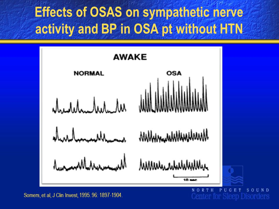 Effects of OSAS on sympathetic nerve activity and BP in OSA pt without HTN Somers, et al, J Clin Invest, 1995. 96: 1897-1904.