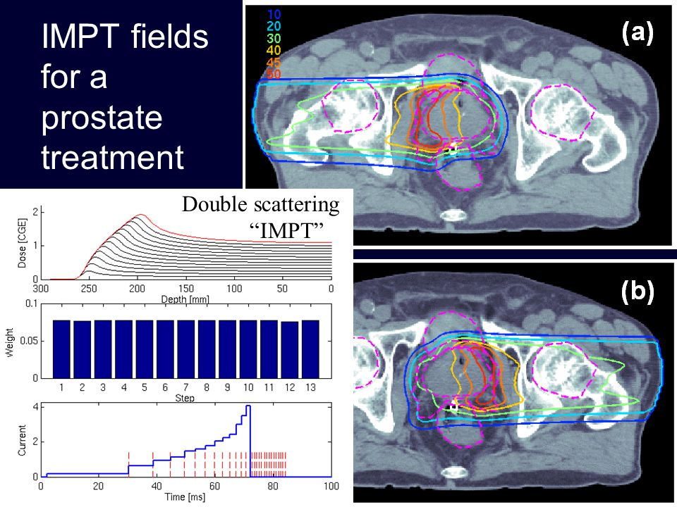 IMPT fields for a prostate treatment Double scattering IMPT